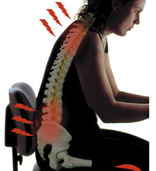 What are Poor Posture Symptoms and How to Avoid Them?