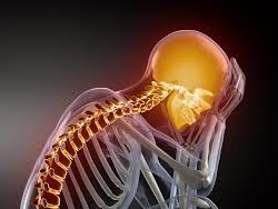 Neck Pain After Surgery: What Are The Causes and Best Solutions