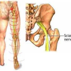 Neck Pain, Back Pain and Sciatica: Understanding the Relation between the Three