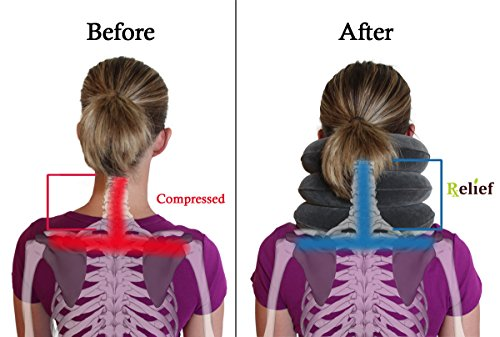 How To Do Neck Traction At Home