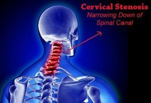 Cervical Stenosis